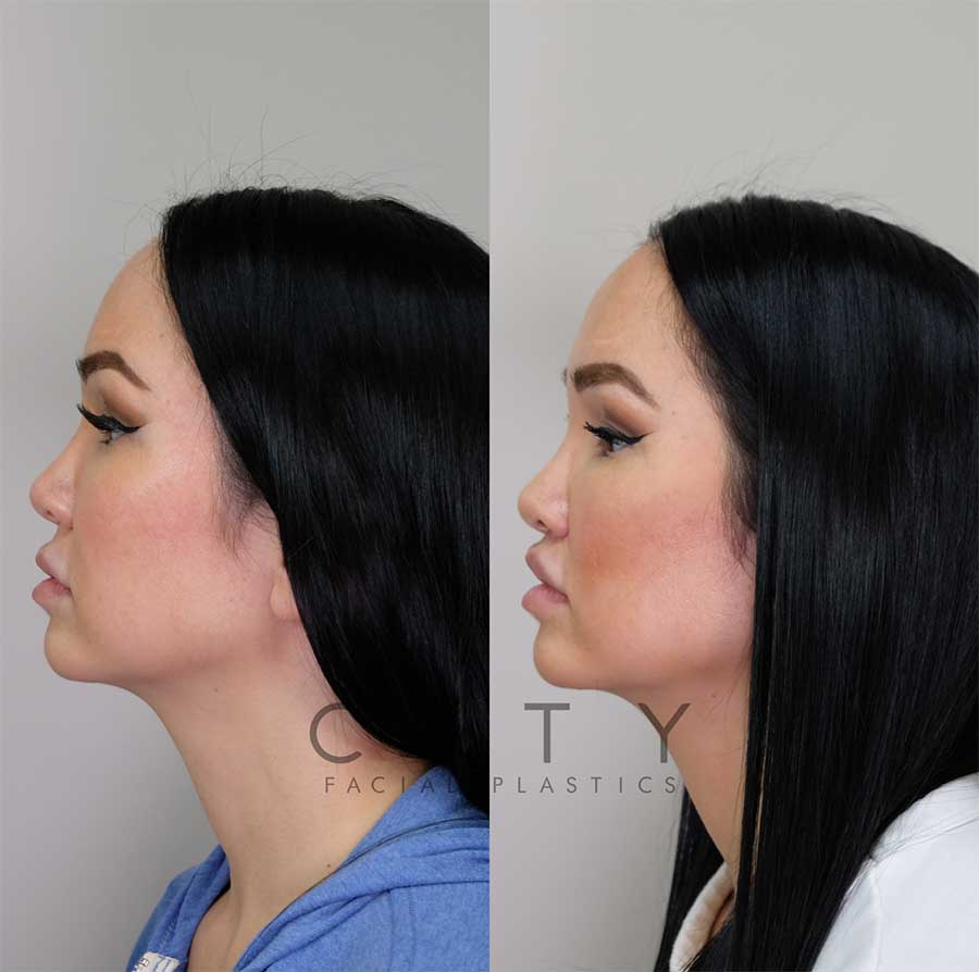 Lip Lift left profile.