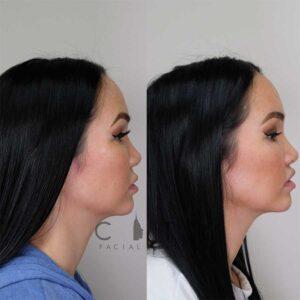Lip Lift right profile.