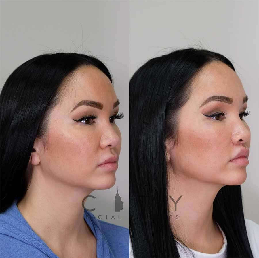 Lip Lift right profile three quarter.