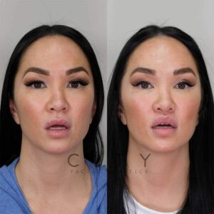 Lip Lift frontal mouth open.