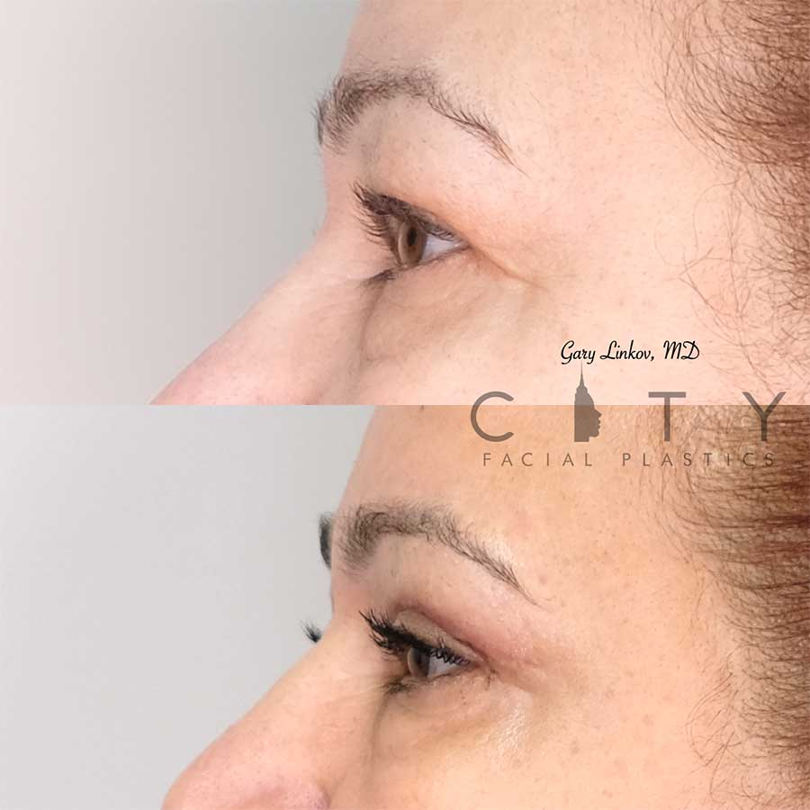 Blepharoplasty profile photo.