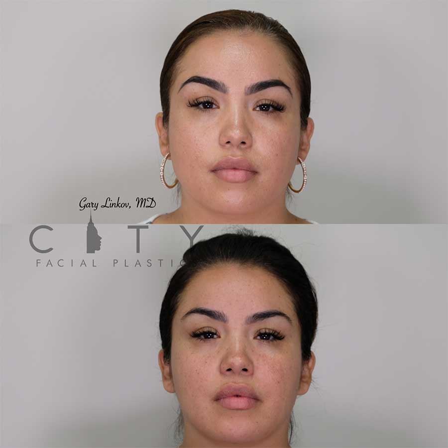 Masseter reduction | NYC Masseter Reduction, New York Botox Injections
