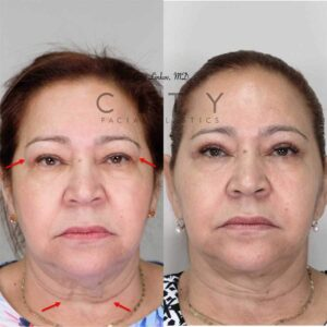 A facelift, necklift, and upper blepharoplasty were done for this gracious lady.