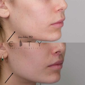 Restylane Lyft Filler placed along the jawline. Right profile three quarter photo.