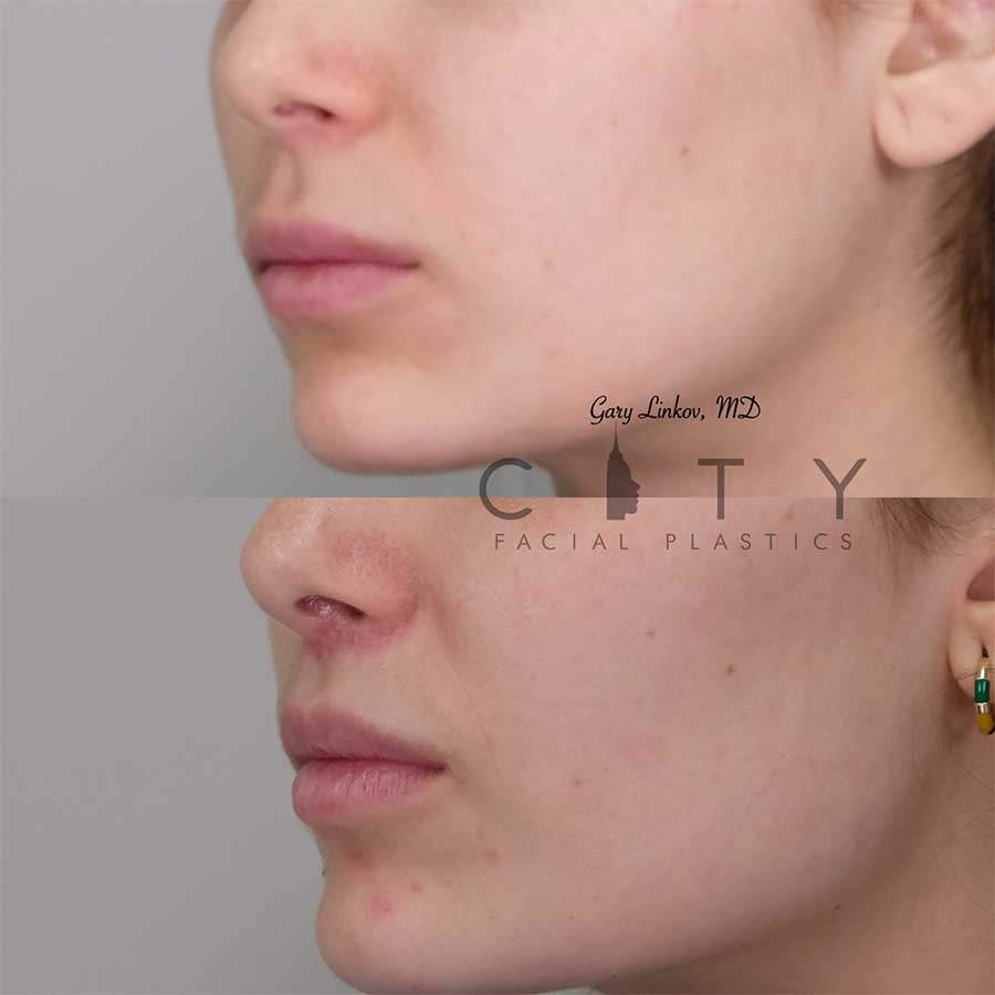 Lip lift 13 left three quarter profile photo.