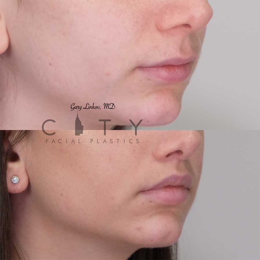 Lip lift 14 right three quarter profile photo.