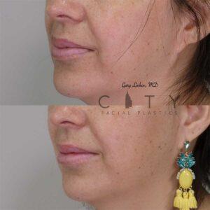 Lip reduction left profile three quarter photo.