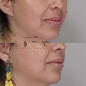Lip reduction right profile three quarter photo.