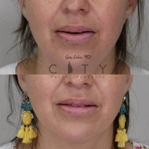 Lip reduction front photo, mouth open.