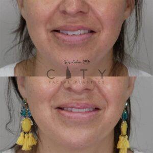Lip reduction front photo, smile.