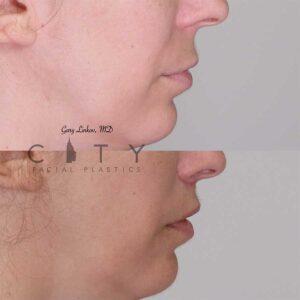 Lip lift 15 right profile.