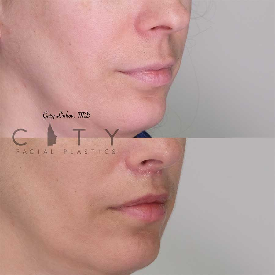 Lip lift 15 right three quarter profile.
