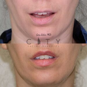 Lip lift 15 frontal mouth open.