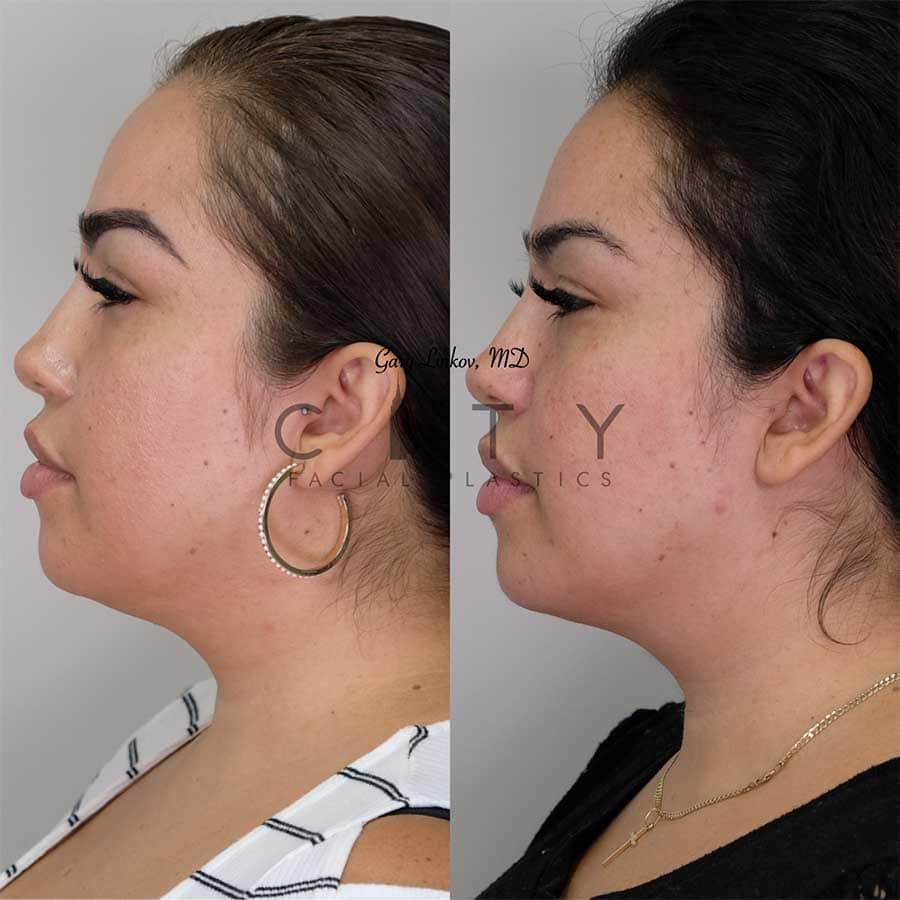 Submental liposuction 1 profile.