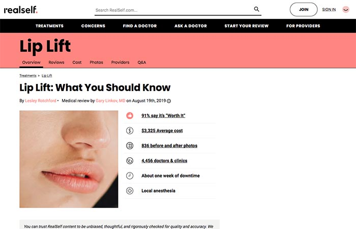 Screenshot of an article - Lip Lift: What You Should Know