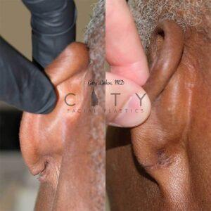 Ear lobe repair 2 back.