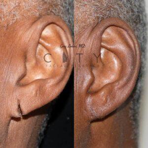 Ear lobe repair 2 front