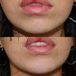 Jawline Filler 3 frontal photo.