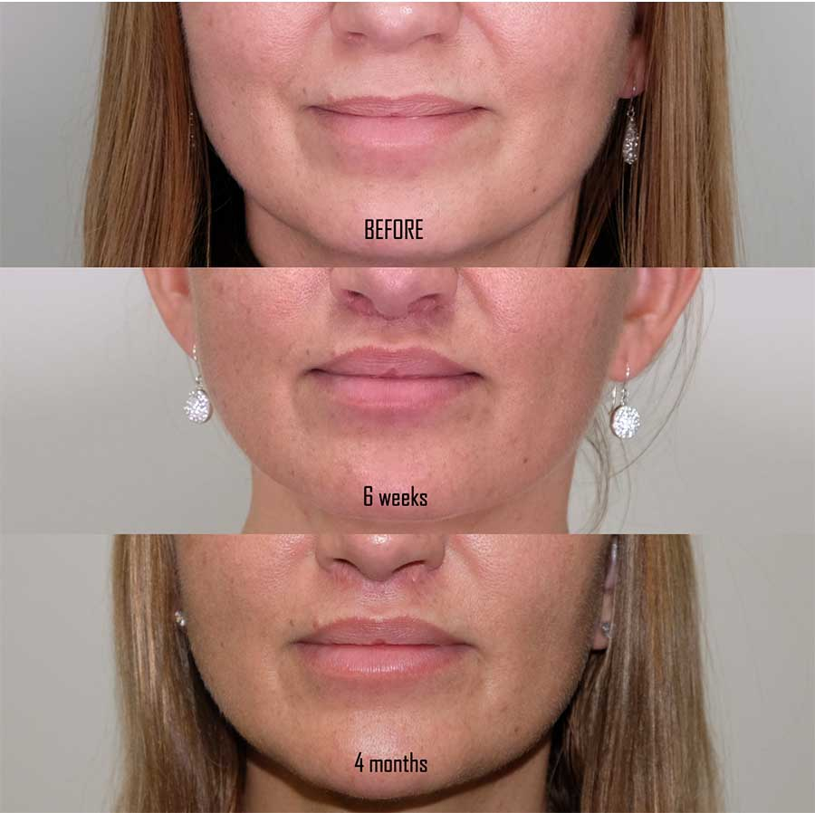Lip Lift 9 frontal with 6 weeks and 4 months post