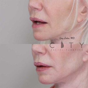 Lip filler 6 left three quarter profile.