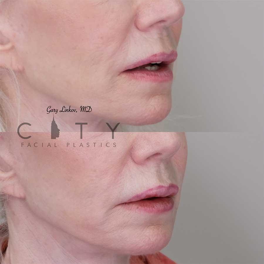 Lip filler 6 right three quarter profile.