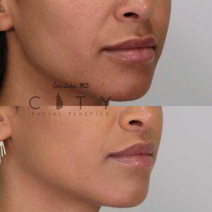 Lip lift 18 right profile three quarter mouth closed