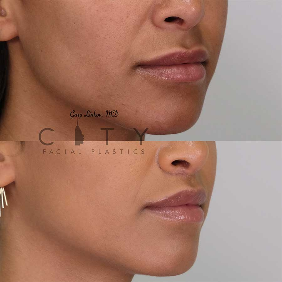 Lip lift 18 right profile three quarter mouth closed