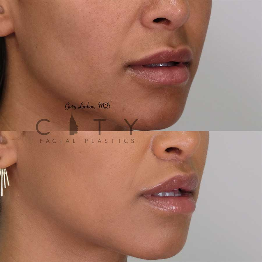 Lip lift 18 right profile three quarter mouth open