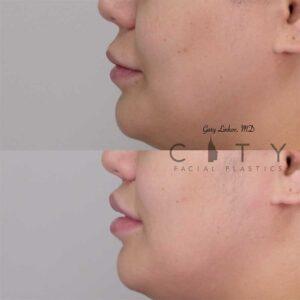 Lip lift 19 left profile