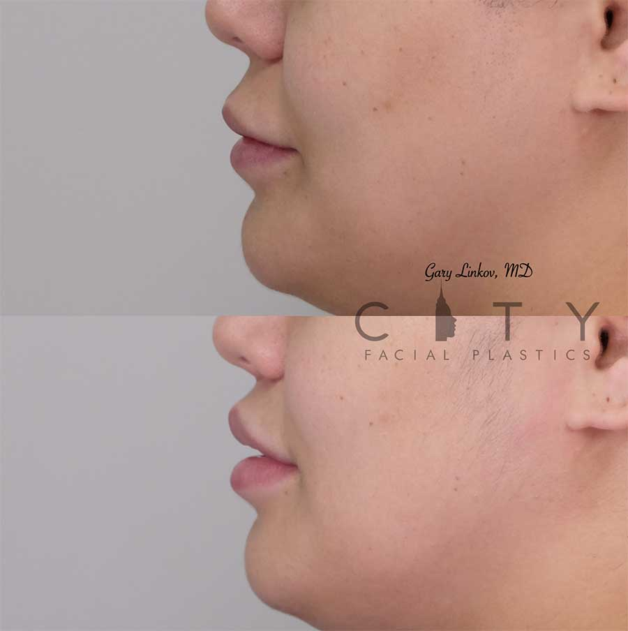 Lip lift 19 left profile