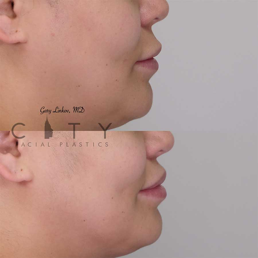 Lip lift 19 right profile