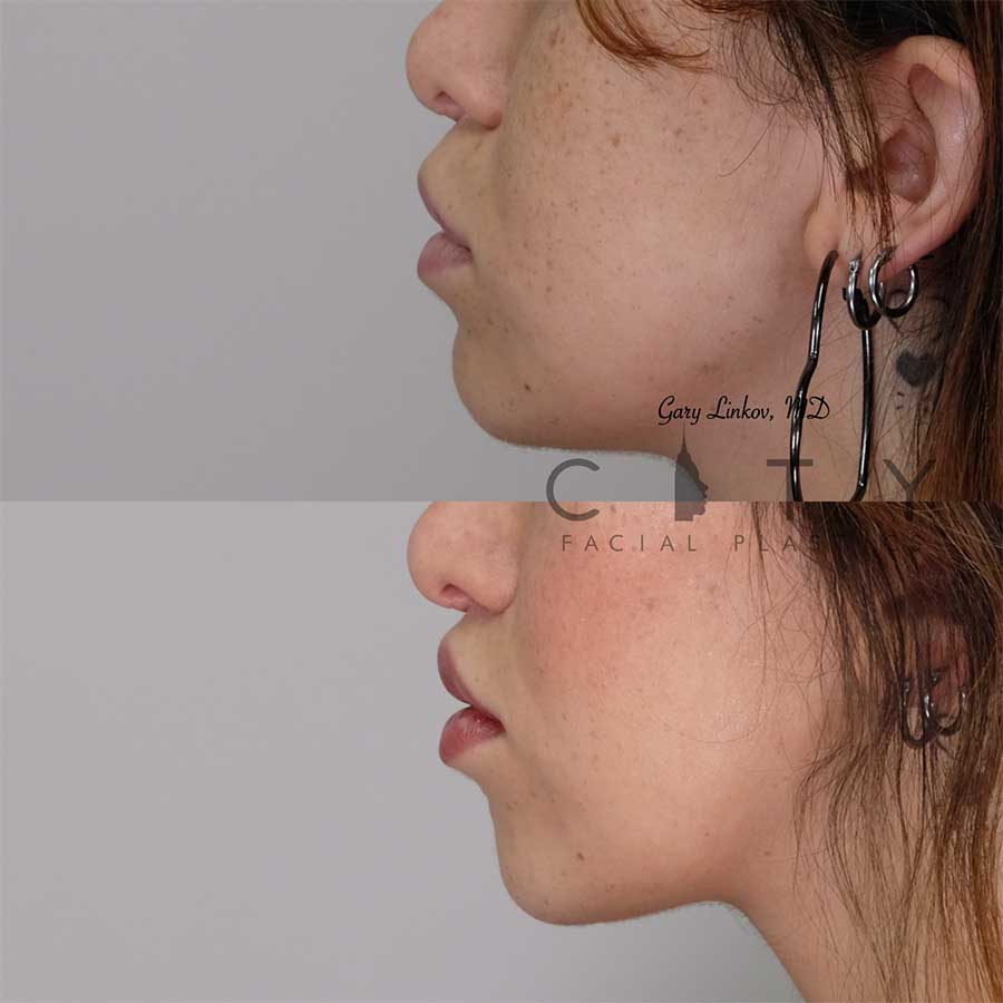 Lip lift 20 left profile