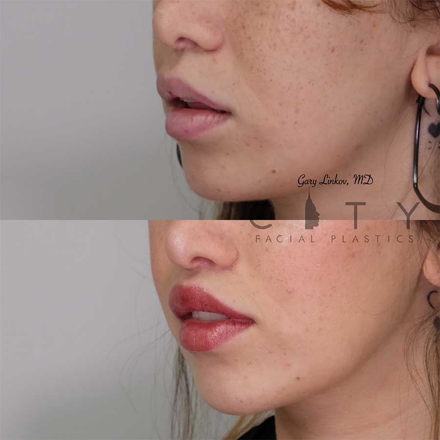 Lip lift 20 left three quarter profile