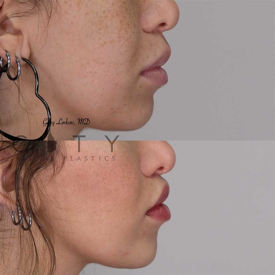 Lip lift 20 right profile