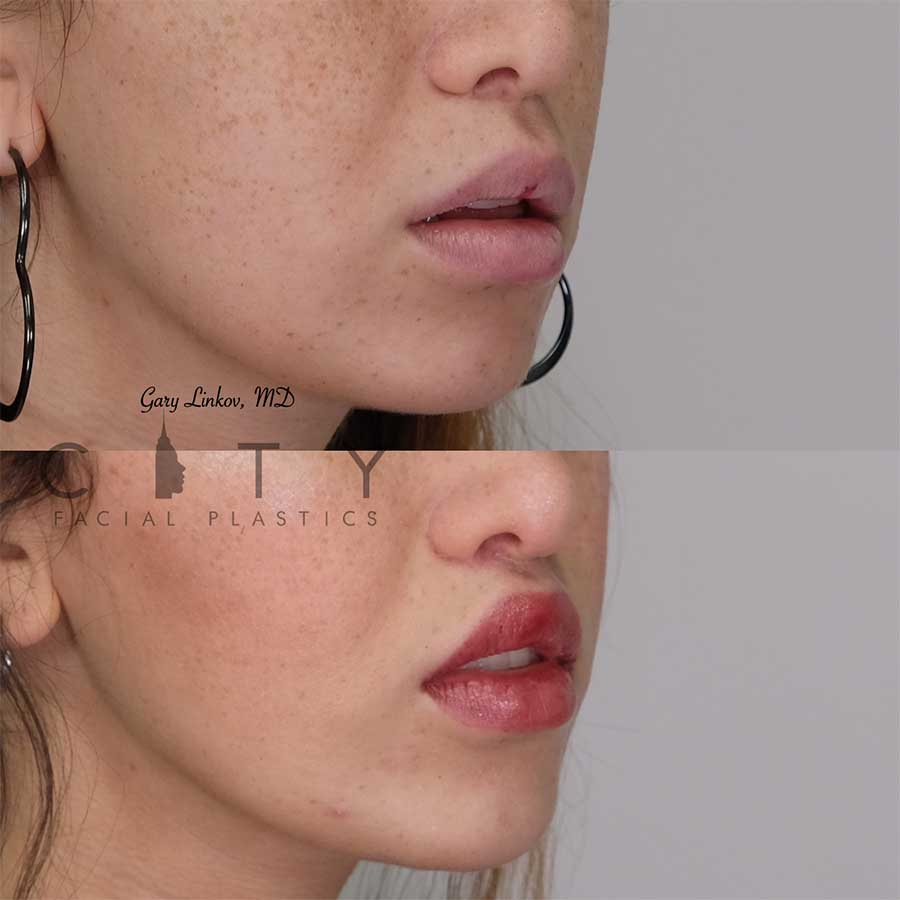 Lip lift 20 right three quarter profile