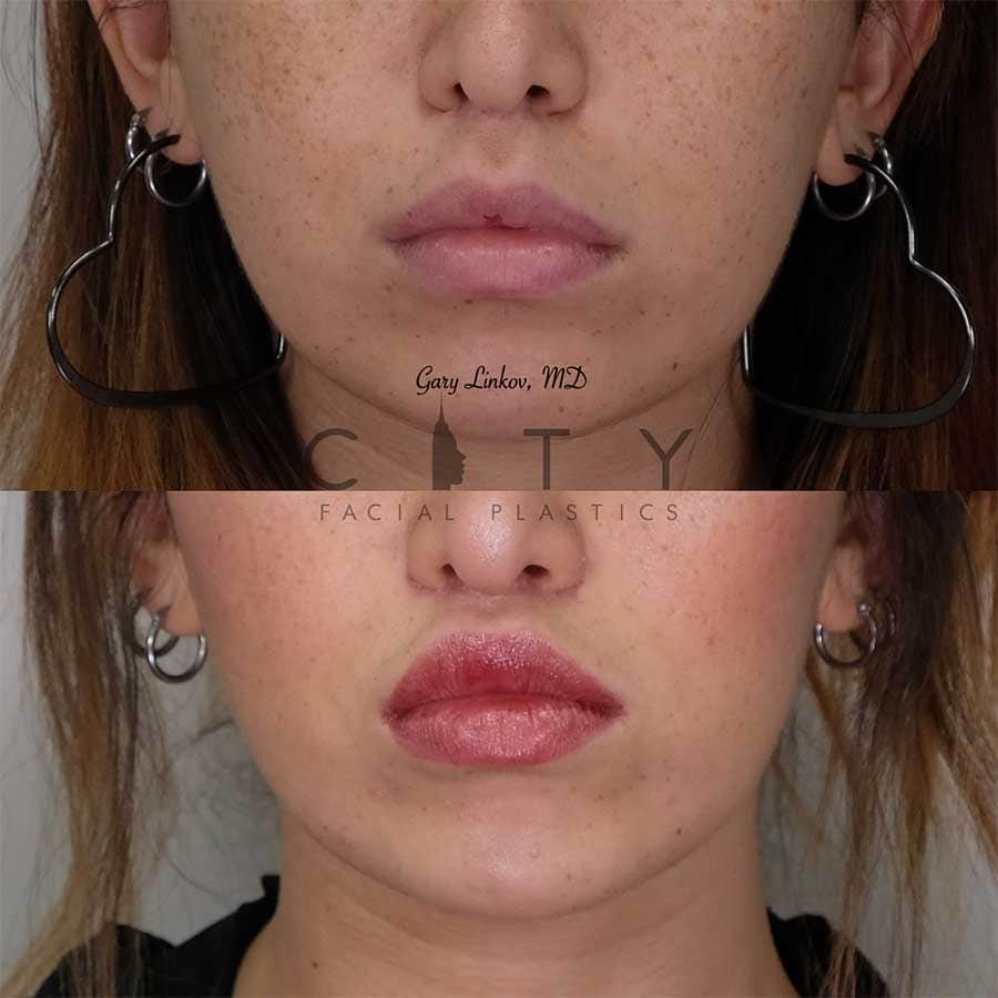 Lip lift 20 frontal mouth closed