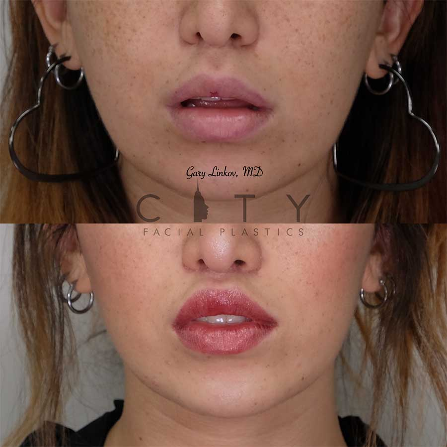 Lip lift 20 frontal mouth open