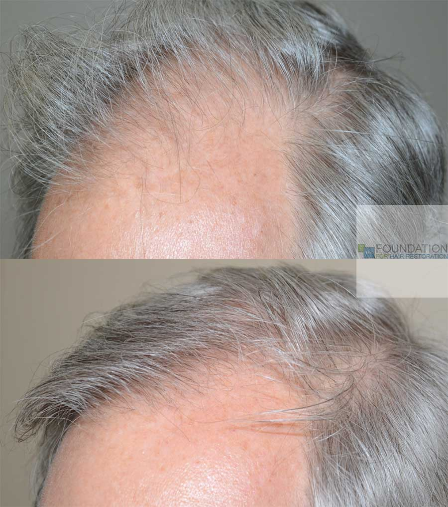 Hair transplant 3 oblique