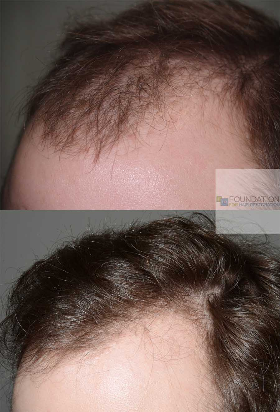 Hair transplant 4 oblique