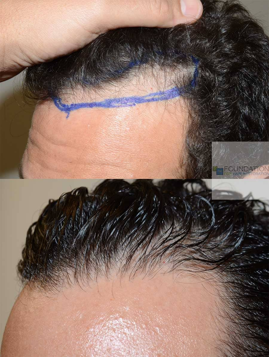 Hair transplant 5 oblique