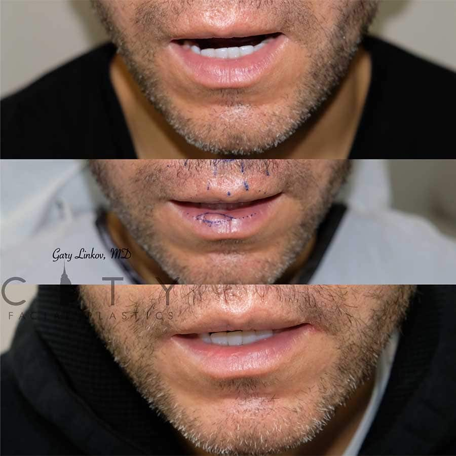 Lip reduction 3 frontal with markings