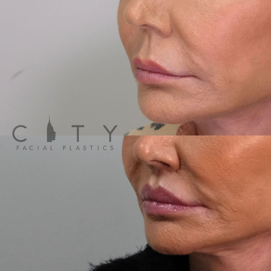 Lip lift 21 L three quarter