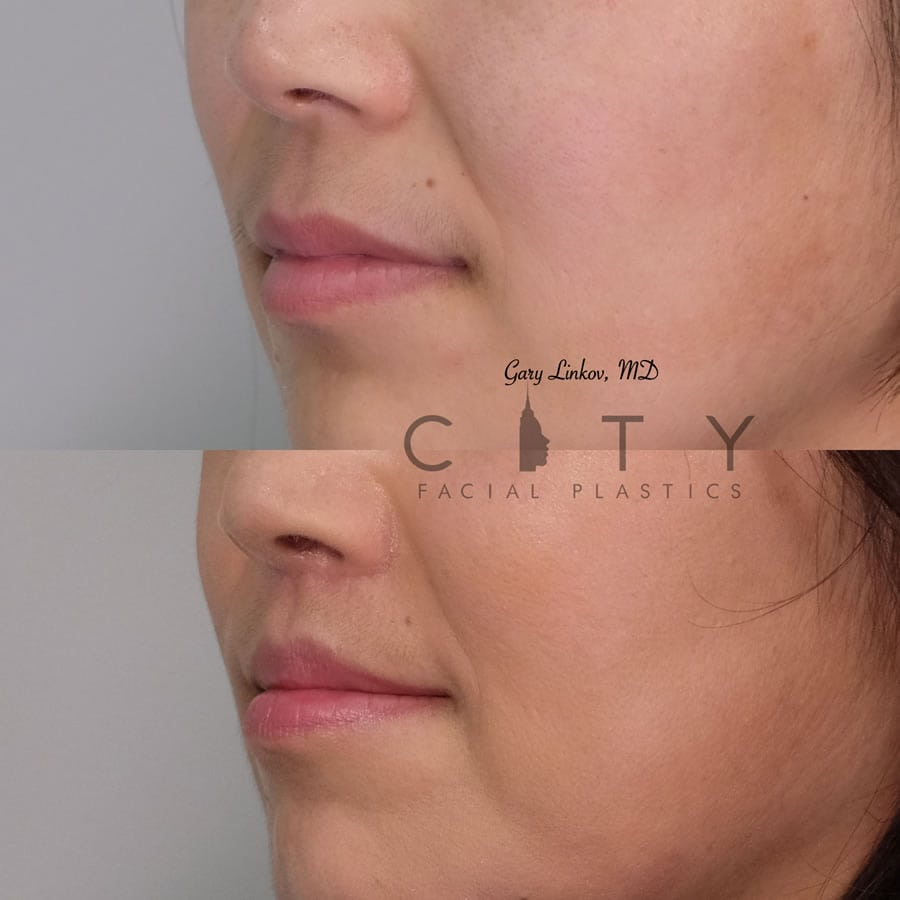 Lip lift 22 L three quarter