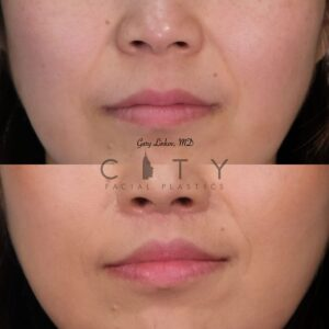 Lip lift 22 frontal mouth closed