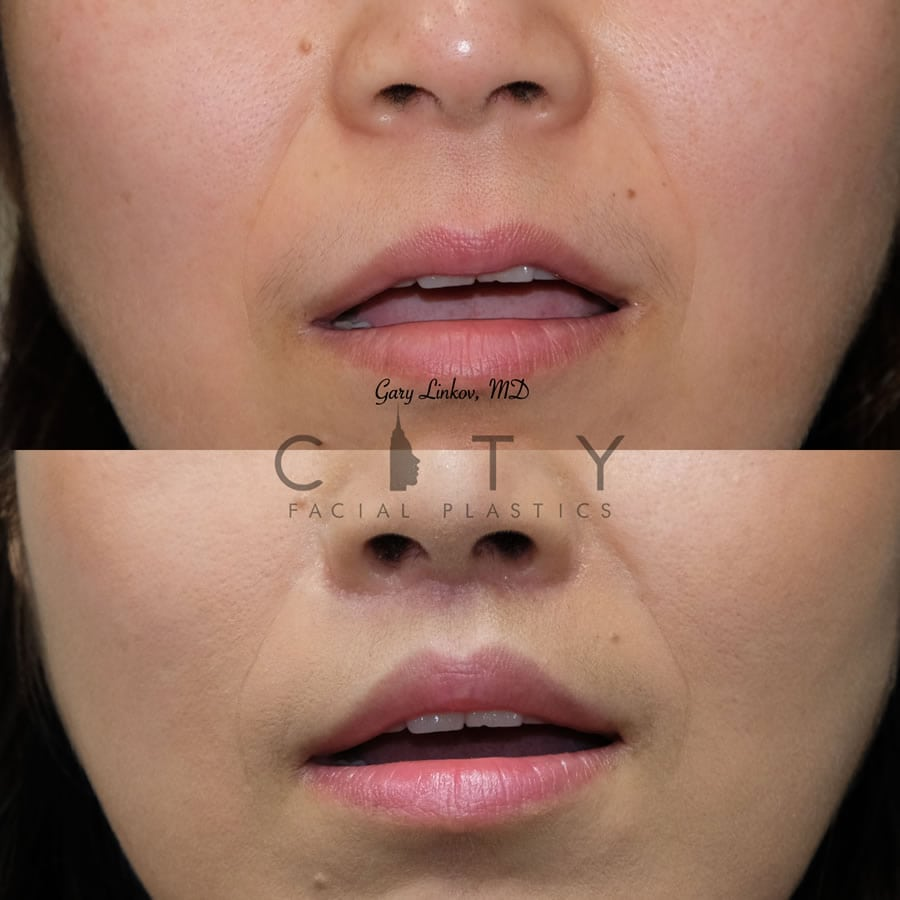 Lip lift 22 frontal mouth open