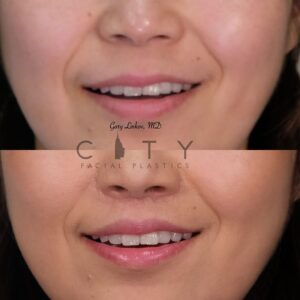 Lip lift 22 frontal smile