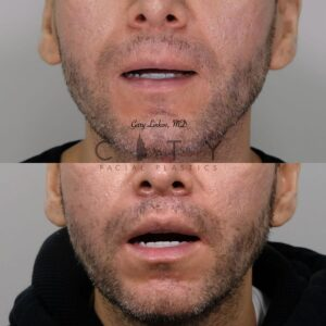Lip lift 23 frontal mouth open