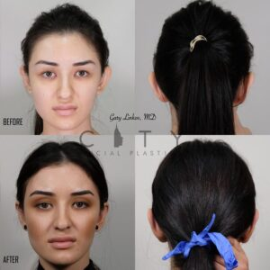 Otoplasty 1 front and back
