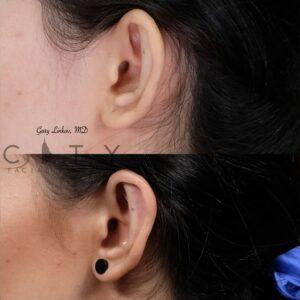 Otoplasty 1 left ear
