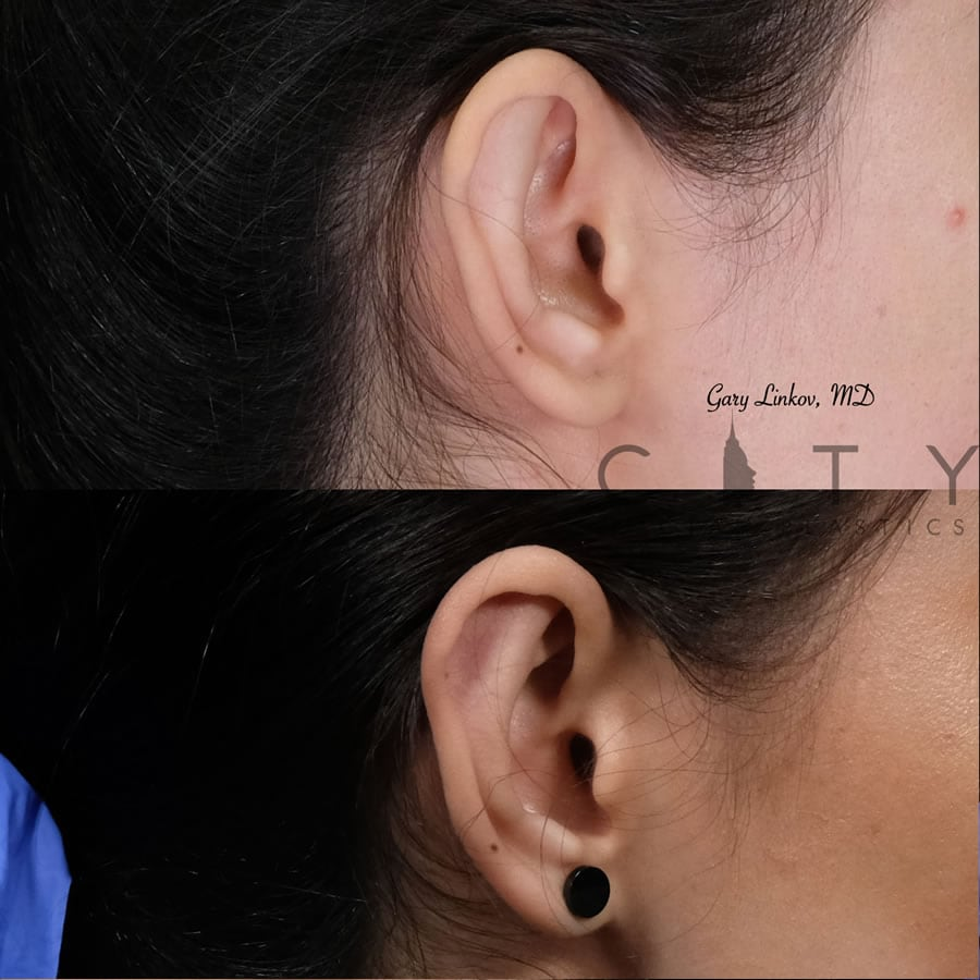 Otoplasty 1 right ear